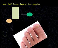 Laser nail fungus removal los angeles - Nail Fungus Remedy. You have nothing to lose! Visit Site Now