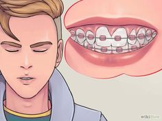 How to Deal With Braces:  This is helpful for anyone new to braces or anyone who wants tips about how to make their experience in braces better.