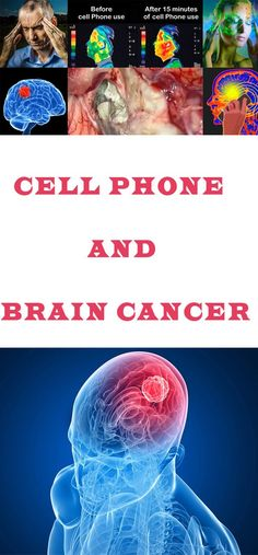 Cell Phone and Brain Cancer Population-based studies have not find the link between cell phones and braincancer, but a recent study finds that the energy from cell phone can affect the activityof the brain Healthy Lifestyle Motivation, Healthy Lifestyle Tips, Healthy Living Tips, Home Remedies Beauty, Natural Home Remedies, Health And Fitness Tips, Health Advice, Healthy Recipes For Weight Loss, Healthy Food