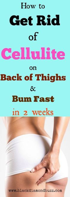 How to get rid of cellulite on thighs and bum naturally in 2 weeks with this fast and proven home remedies