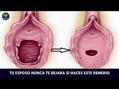 Trucos que toda mujer debe conocer para mantener la apariencia de su vagina siempre rejuvenecida - YouTube