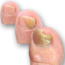 Plesňová infekcia nechtov