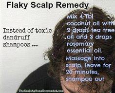Flaky Scalp Remedy.  Stupid dry winter skin!