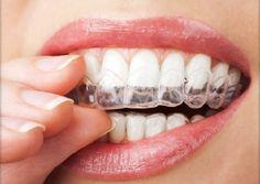 4 técnicas para no rechinar los dientes El bruxismo se caracteriza por apretar mucho los dientes o mandíbulas y hacer ruido con los dientes y muelas. En la mayoría de los casos ocurre durante las noches y puede provocar muchos problemas y dolores, hasta rotura de piezas dentales y lastimaduras.