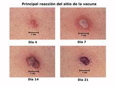 Proceso de lo que sucede con la vacuna contra la viruela