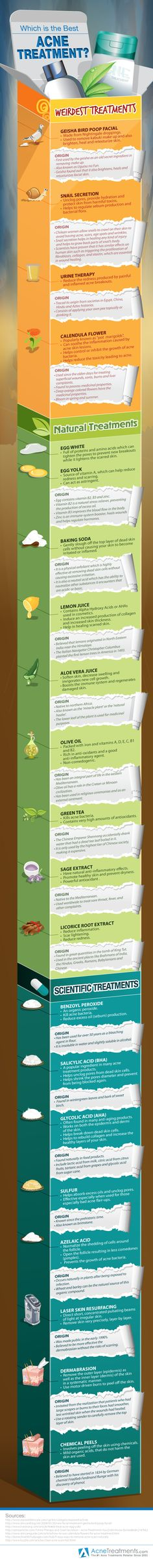 Which is the Best Acne Treatment?  [by Acne Treatments -- via #tipsographic]. More at tipsographic.com