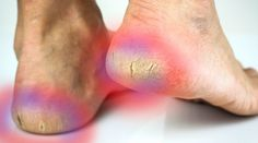 If you have cracked heels and you want to soften the skin of the heel we discover some home remedies Home Remedies, Natural Remedies, Diy Beauty, Beauty Hacks, Kinds Of Vegetables, Feet Care, Body Care, Manicure, Simple