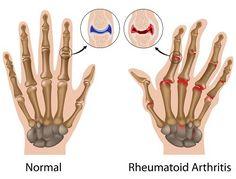 Artritis reumatoide, cómo controlar sus síntomas La artritis reumatoide (o reumatoidea) es una enfermedad crónica, inflamatoria y de origen autoinmune.