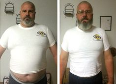 Brian was diagnosed with Type 2 diabetes recently and started to think about the common diabetes complications. However, he noticed that the diet plan he was given seemed designed to keep you diabetic. He decided to try something completely different. Beat Diabetes, Gestational Diabetes, Diabetic Exercise, Carb Free Diet, Diets For Men, Diabetes Supplies, Lchf Diet, Diabetes Remedies, Diet