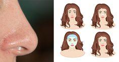 Čierne bodky sú postrachom krásnej tváričky. Vyskytujú sa hlavne na nose, v jeho okolí, ale aj na brade a čele. Ide o najmiernejšiu formu akné, ktorá vzniká zanesením a upchávaním pórov, no v žiadnom prípade nevyzerá vôbec vábne. Ak hľadáš účinné, no nedráždivé spôsoby ako sa zbaviť čiernych bodiek, čítaj nasledujúcich pár riadkov. Všetky ingrediencie ponúka tvoja kuchyňa.