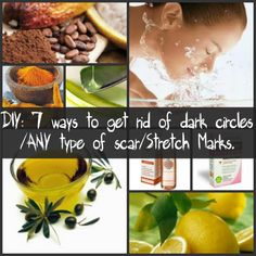 7 Ways to Get Rid of Dark Circles, Scars and Stretch Marks