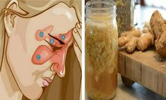 Combine These 2 Ingredients and Get Rid Of Rhinitis, Flu, Phlegm, Sinusitis and More… - Our Home Remedy Snoring Remedies, Home Remedies, Natural Remedies, Health Remedies, Ovarian Cyst Treatment, Ovarian Cyst Symptoms, Sinus Inflammation, Clean Your Liver, Soup Cleanse
