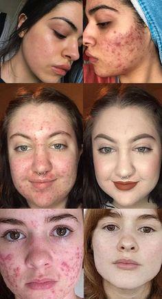 peeling peau qui pele