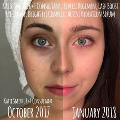 When you look at your face in the mirror every day, you don't notice much change, but try taking care of your skin for 3 months and do a pic like this!! You will be amazed!!!!