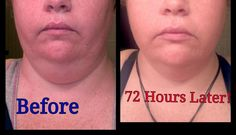 Look at these results in 72 hours! Using That Crazy Wrap Thing!! It really works ask me how