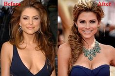 Maria Menounos Plastic Surgery Before and After
