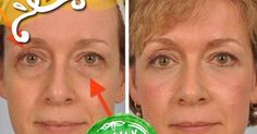 If you are struggling with saggy eyelids , then you must have gone through the frustrating process of applying make-up. Source: healt...