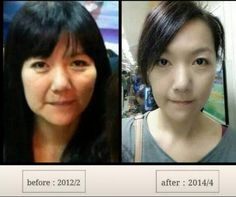 Amazing results with our Ageloc transformation & blue pearls! She loos 20 yrs younger!