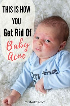 It is heart breaking when our little one's beautiful baby skin is suffering with baby acne. Read our simple tips on how to get rid of baby acne in a natural way. It is heart breaking when our little one's beautiful baby skin is sufferi Heat Rash On Face, Baby Heat Rash, Baby Rash On Face, Baby Acne Remedy, Acne Remedies, Formula Fed Babies, Vitamins For Skin, Amor, Bebe