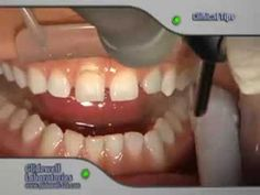 Dental Clinical Tutorial: Final Impressions for No-Prep Veneers - presented by Glidewell Laboratories.