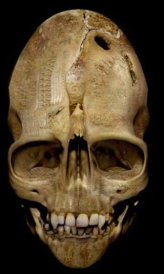 The Andover Vampire Skull - The Andover skull – experts say it's real. (is either Nephilim/Giant or UFO alien. Giants come from Noah's son Ham. Aliens from fallen angels and human woman, according to scripture. (photoshopped but interesting idea ) Les Aliens, Aliens And Ufos, Ancient Aliens, Ancient History, Nephilim Giants, Nephilim Bones, Vampire Skull, Arte Tribal, Ancient Mysteries