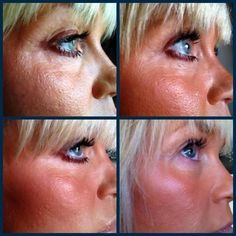 Ready to see what NeriumAD can do for your skin?  Visit emilywintle.nerium.com to purchase!  With our 30 day money back guarantee you having nothing to lose!  Better yet, sign up as a preferred customer and get your product for free forever!  Ask me how!