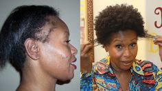 "Learn how I repaired my thinning edges after having severe hair damage from perms and excessive heat. For great natural hair tips, check out my book ""Kinky C..."