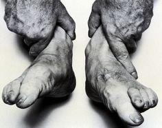 John Coplans Self Portrait (Hands Holding Feet) 1985 Close Up Art, Great Photographers, White Photography, Vintage Photography, Drawing Reference, Human Body, Photo Book, Creative Art, Holding Hands