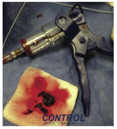 From: FDA Clears New Mechanical Blood Clot Removal System for Coronary and Peripheral Vasculature- Cath Lab Digest Vol 22 Issue 10- October 2014