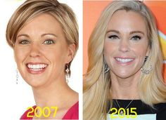 Kate Gosselin Plastic Surgery Before & After - http://plasticsurgerytalks.com/kate-gosselin-plastic-surgery/