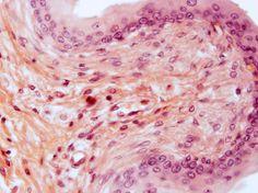 Tecido Conjuntivo Frouxo - O tecido conjuntivo frouxo pode ser encontrado em, praticamente, todos os órgãos. As suas funções são principalmente o suporte e a nutrição de epitélios de revestimento e a proteção de vasos sanguíneos, músculos e nervos. Também desempenha papel no isolamento de infecções e no processo de cicatrização.