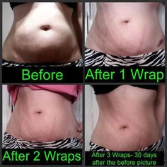 IT WORKS Body Wraps Before and After - Stomach