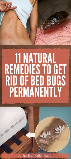 11 Natural Remedies To Get Rid Of Bed Bugs Permanently – Pure Healthcare Thyme Essential Oil, Tea Tree Essential Oil, Signs Of Bed Bugs, Rid Of Bed Bugs, Bed Bug Bites, Natural Home Remedies, Natural Healing, How To Get Rid, Health Remedies