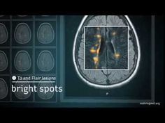 MRI in MS: Amazing NEW video to understand different MRI changes seen in multiple sclerosis: T2, FLAIR, contrast, black holes, and atrophy. Learn more at www...