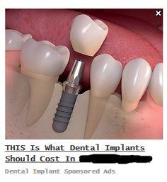 Dental Services, Care Plans, Dental Care, Dental Caps, Dental Health