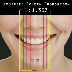 """What is the Golden Proportion Rule? The Golden Proportion Rule, or """"Divine Rule"""", refers to the ratio 1 to This ratio has long been used in a Best Teeth Whitening, Dental Aesthetics, Facial Aesthetics, Dental Anatomy, Dental Technician, Dental Facts, Botox Injections, Dental Assistant, Al Dente"""