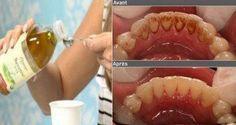 Cet ingrédient magique fait disparaitre la plaque de tartre et tue les bactéries présentes dans votre bouche