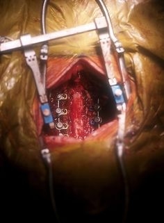 Neurosurgery! what can we say about an open brain surgery that isn ...