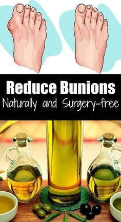 Bunions can be painful. I know many women who suffer from this painful and irritating condition. Honestly, I understand them. Nowadays, it seems like high heels are the standard for everything. And wearing high heels Bunion Remedies, Foot Remedies, Herbal Remedies, Health Remedies, Natural Remedies, Natural Treatments, Bunion Exercises, Health And Wellness, Useful Life Hacks