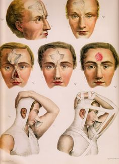 """Rhinoplasty of the 1800's (1831-1854) fig.1-3 is the Indian Method via frontal flap. fig.7 is the Italian method with brachial flap and """"reduction apparatus"""""""