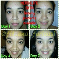 Herbalife is more than just a shake.. We help make the skin look HEALTHY! Check out our 7 day results with our herba-sis!  Stunning gurl!! Try the 7day kit for yourself! Inbox me to try it for yourself!  #fitmom #fitmoms #fitness #queen #love #girls #determination #passion #motivation #nike #herbalife #tgif #fitthickarmy #clearskin #traindirty #fitcouple #swolemate #bikini #bikinicompetitor #yoga #fitspo by fit_nique24