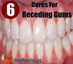 6 Natural Cures For Receding Gums Teeth Health, Healthy Teeth, Dental Health, Healthy Life, Dental Care, Oral Health, Dental Hygiene, Herbal Remedies, Health Remedies