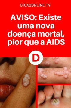 AVISO: Existe uma nova doença mortal, pior que a AIDS Hpv, Natural Medicine, Healthy Life, Diabetes, Health Fitness, Gabriel, Organize, Beauty, Workout Plans