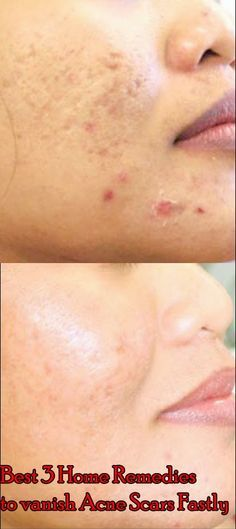 Best 3 Home Remedies to vanish Acne Scars Fastly - Best Home Remedies
