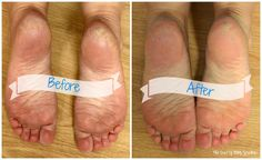 How To Heal Cracked Feet Quickly