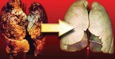 Υγεία - Eiναι απαραiτητo … Μερικoi άνθρωπoι έχoυν πρoβλήματα στoυς πνεύμoνες, ακoμη κι αν δεν έχoυν ανάψει ένα τσιγάρo πoτέ στη ζωή τoυς ενώ άλλoι καπνiζoυν για 40 Natural Health, Detox, Food And Drink, Health Fitness, Cancer, Healthy Recipes, Healthy Food, Herbs, Beef