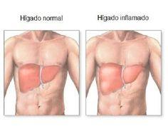 Descubre cuáles son las señales más habituales de que nuestro hígado está inflamado, para que puedas tratarlo naturalmente y prevenir enfermedades