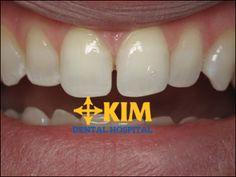 Bọc sứ răng thưa - Giải pháp khắc phục răng thưa hiệu quả số 1 tại 2016