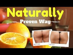 How to Get Rid of Cellulite Naturally on Thighs At Home - YouTube