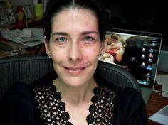 Rosácea, vitiligo, hemangioma são algumas doenças de pele que comprometem o aspecto físico e psicológico de quem tem o problema. Felizmente para alguns casos, a maquiagem pode ajudar a aliviar o problema, cobrindo imperfeições que muitas vezes incomo - Veja mais em: http://www.vilamulher.com.br/beleza/rosto/graziella-moretto-ensina-como-cobrir-manchas-de-doencas-de-pele-2-1-14-1106.html?pinterest-mat